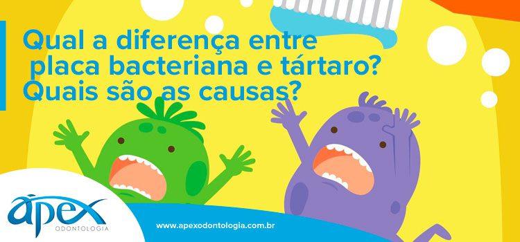 Qual a diferença entre placa bacteriana e tártaro? Quais são as causas? | Por Ápex Odontologia | Dentista SP Brooklin